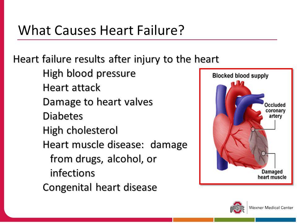 What Causes Heart Failure.