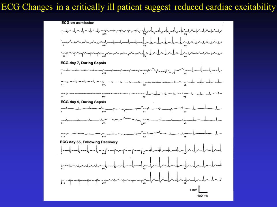 ECG Changes in a critically ill patient suggest reduced cardiac excitability