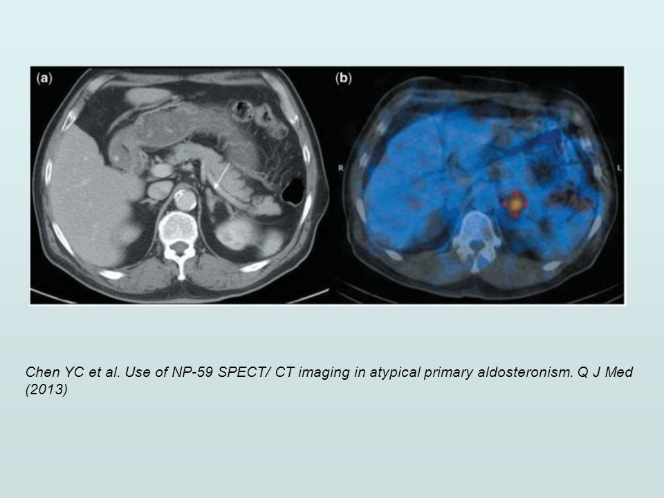 Chen YC et al. Use of NP-59 SPECT/ CT imaging in atypical primary aldosteronism. Q J Med (2013)