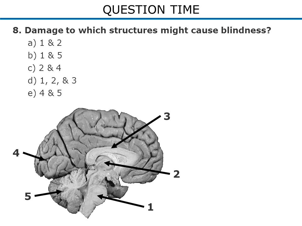 QUESTION TIME 8. Damage to which structures might cause blindness.