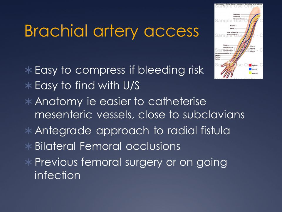 Brachial artery access  Easy to compress if bleeding risk  Easy to find with U/S  Anatomy ie easier to catheterise mesenteric vessels, close to subclavians  Antegrade approach to radial fistula  Bilateral Femoral occlusions  Previous femoral surgery or on going infection