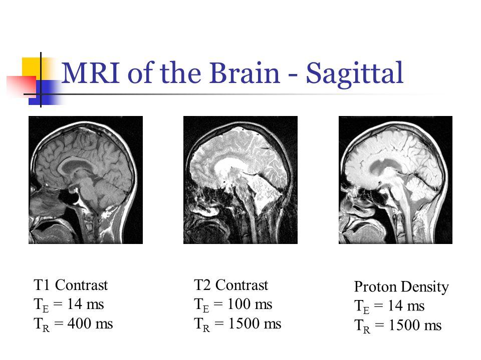 MRI of the Brain - Sagittal T1 Contrast T E = 14 ms T R = 400 ms T2 Contrast T E = 100 ms T R = 1500 ms Proton Density T E = 14 ms T R = 1500 ms