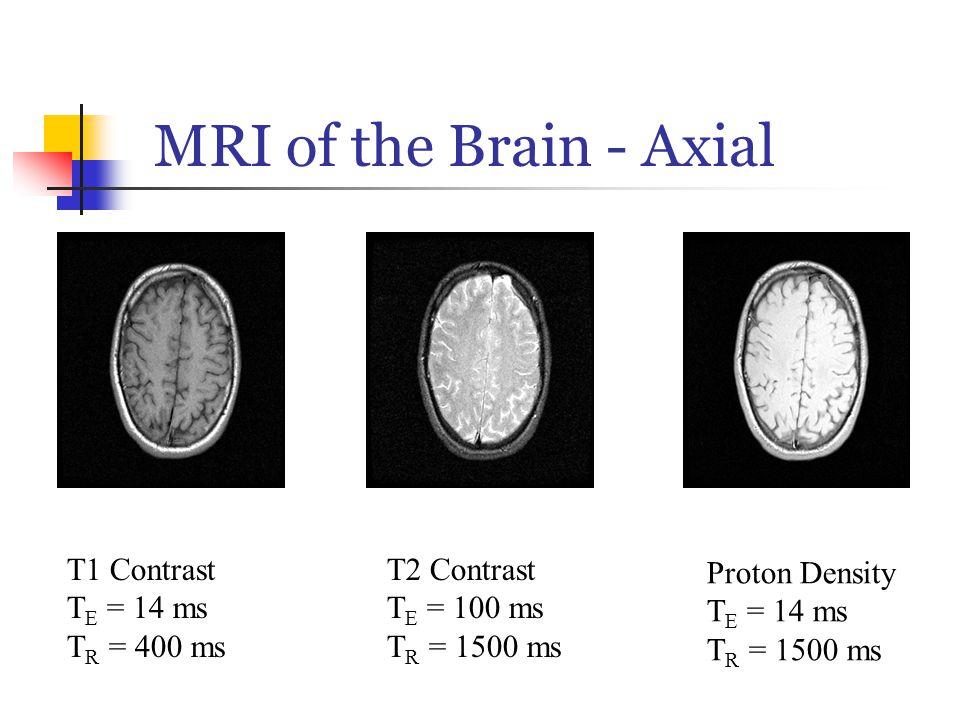 MRI of the Brain - Axial T1 Contrast T E = 14 ms T R = 400 ms T2 Contrast T E = 100 ms T R = 1500 ms Proton Density T E = 14 ms T R = 1500 ms