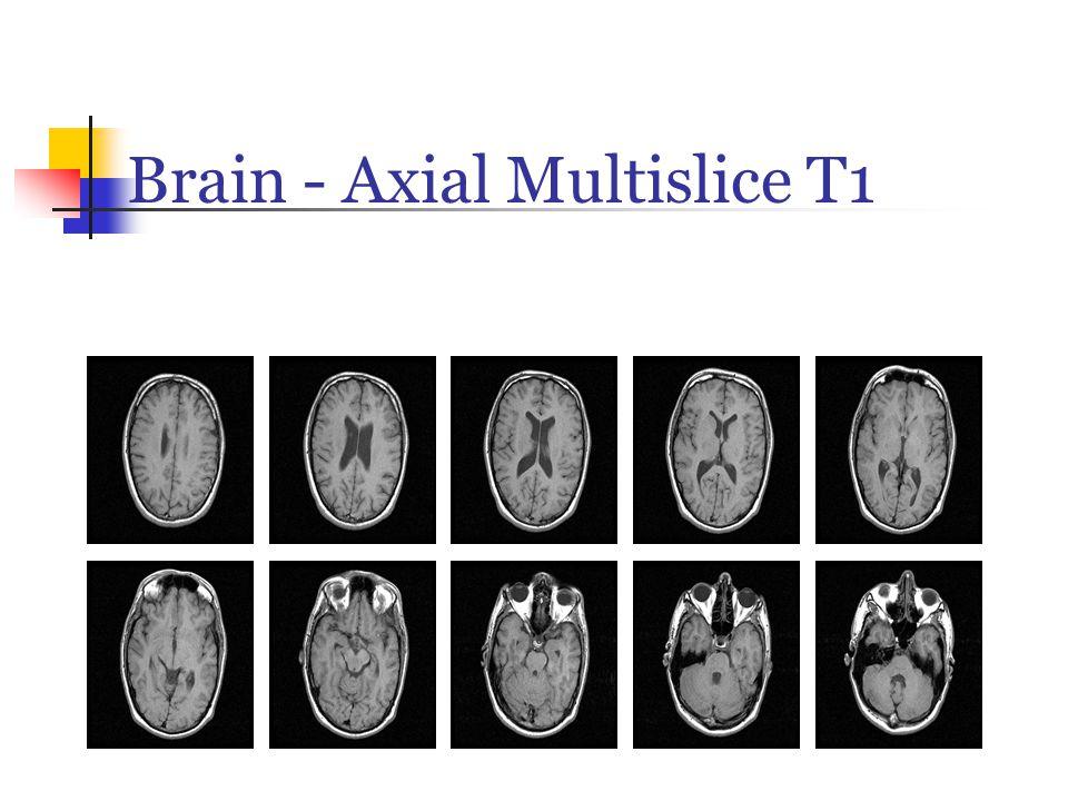 Brain - Axial Multislice T1