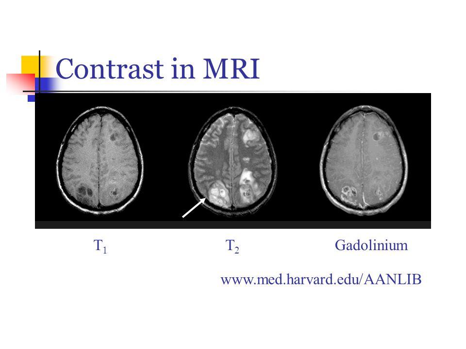 Contrast in MRI T1T1 T2T2 Gadolinium The Whole Brain Atlas: http://www.med.harvard.edu/AANLIB/