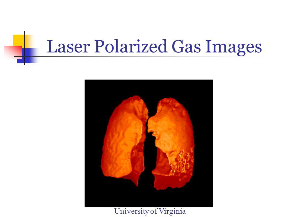 Laser Polarized Gas Images University of Virginia