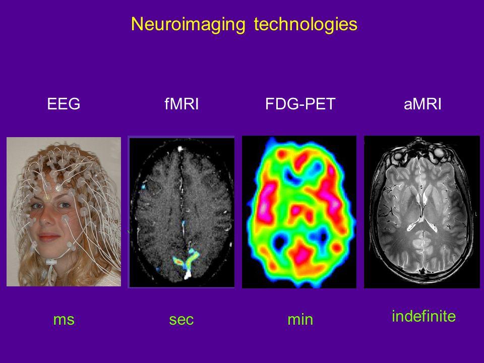 Magnetic Resonance Imaging: the MRI scanner TP