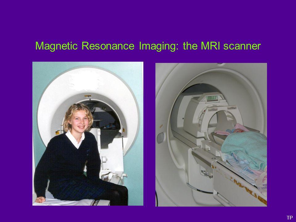 Improvements in MRI resolution 1.5T, 27 averages Montreal, 1995 0.1T Nottingham, 1978 7.0T Nottingham, 2005