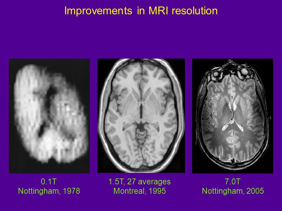 Native MRIRegistered MRI Tissue Classification Segmentation White-matter Density Cerebral sulci Cortical thickness TP Analysis Image processing of MRI inputs