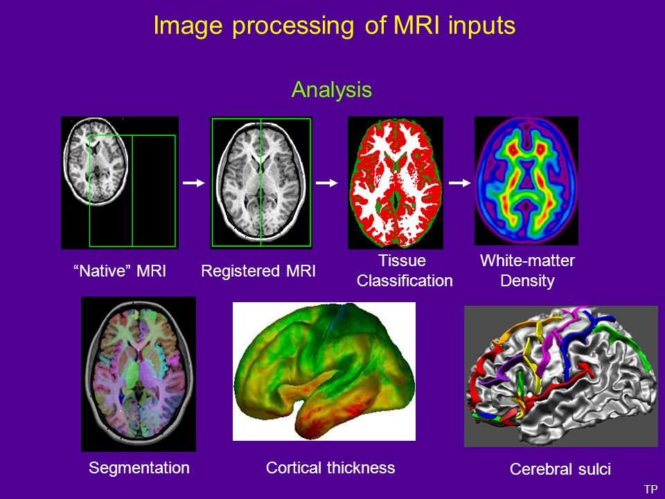 """Native"" MRIRegistered MRI Tissue Classification Segmentation White-matter Density Cerebral sulci Cortical thickness TP Analysis Image processing of M"