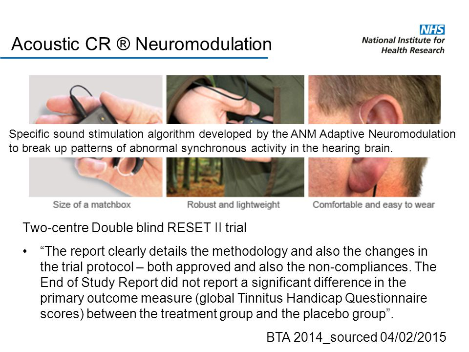 Acoustic CR ® Neuromodulation Specific sound stimulation algorithm developed by the ANM Adaptive Neuromodulation to break up patterns of abnormal sync