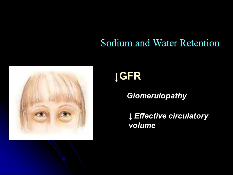 Sodium and Water Retention ↓GFR Glomerulopathy ↓ ↓ Effective circulatory volume