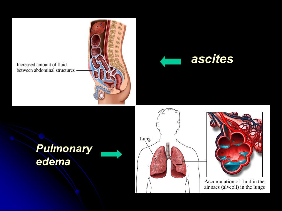 ascites Pulmonary edema