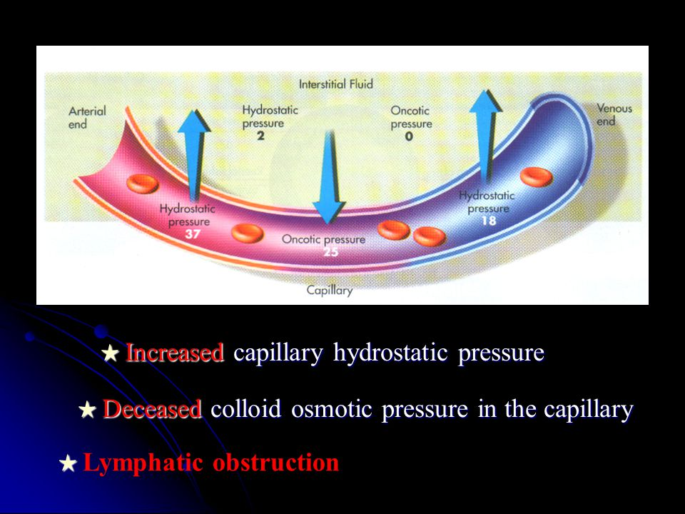 ★ Increased capillary hydrostatic pressure ★ Deceased colloid osmotic pressure in the capillary ★ ★ Lymphatic obstruction