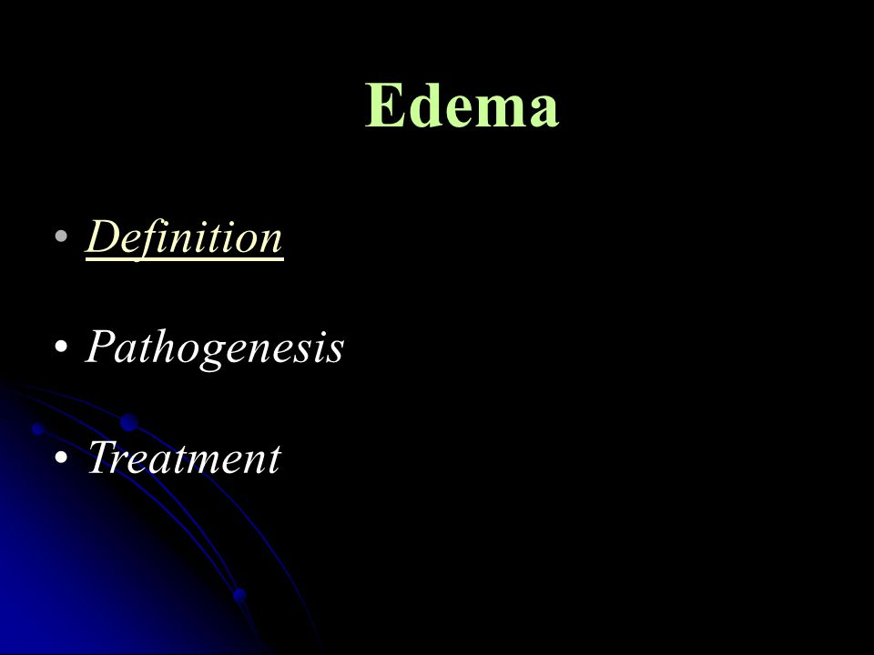 Edema is defined as soft tissue swelling due to expansion of the interstitial volume.