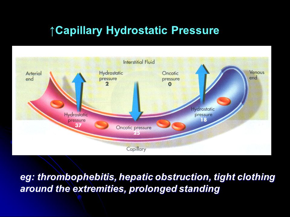 ↑Capillary Hydrostatic Pressure eg: thrombophebitis, hepatic obstruction, tight clothing around the extremities, prolonged standing