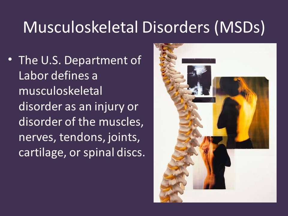 Musculoskeletal Disorders (MSDs) The U.S.