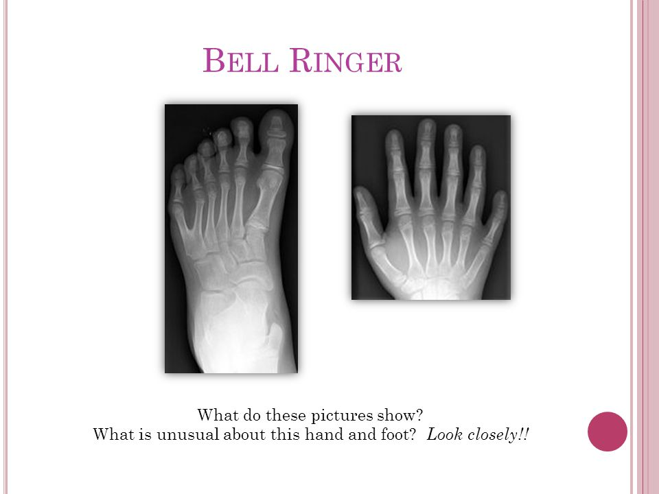 B ELL R INGER What do these pictures show What is unusual about this hand and foot Look closely!!