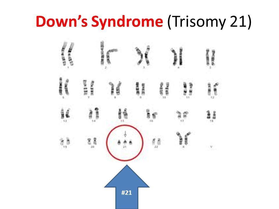 Down's Syndrome (Trisomy 21) #21