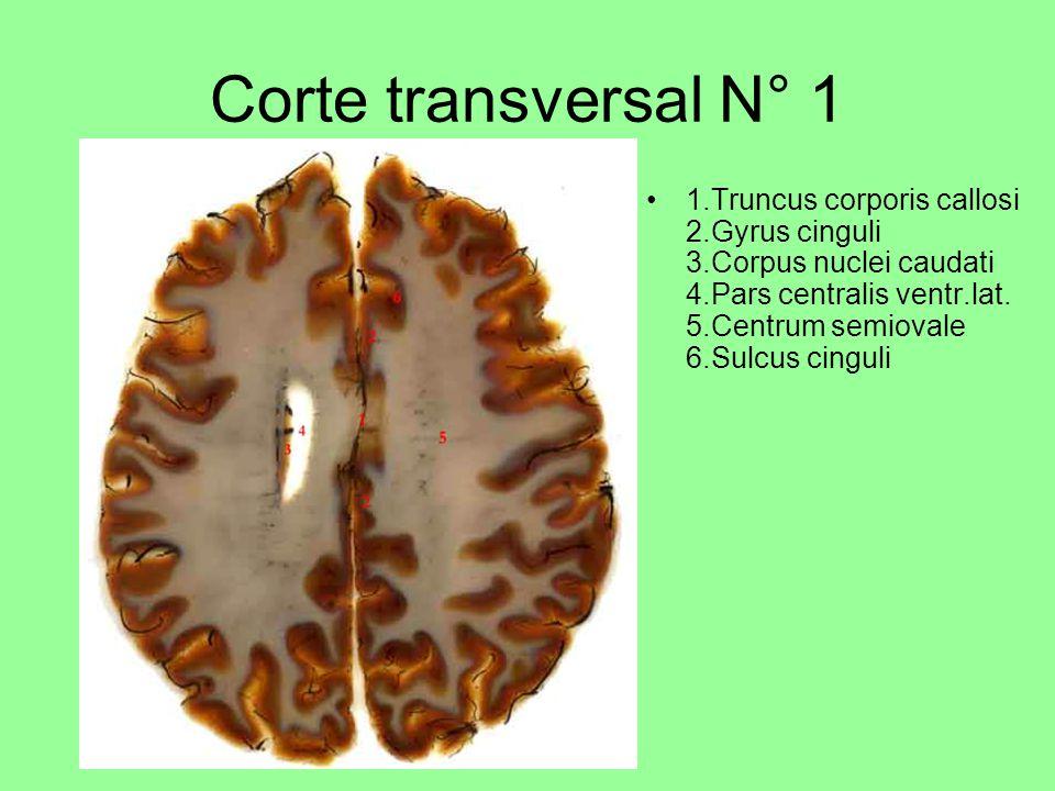 Corte transversal N° 1 1.Truncus corporis callosi 2.Gyrus cinguli 3.Corpus nuclei caudati 4.Pars centralis ventr.lat.
