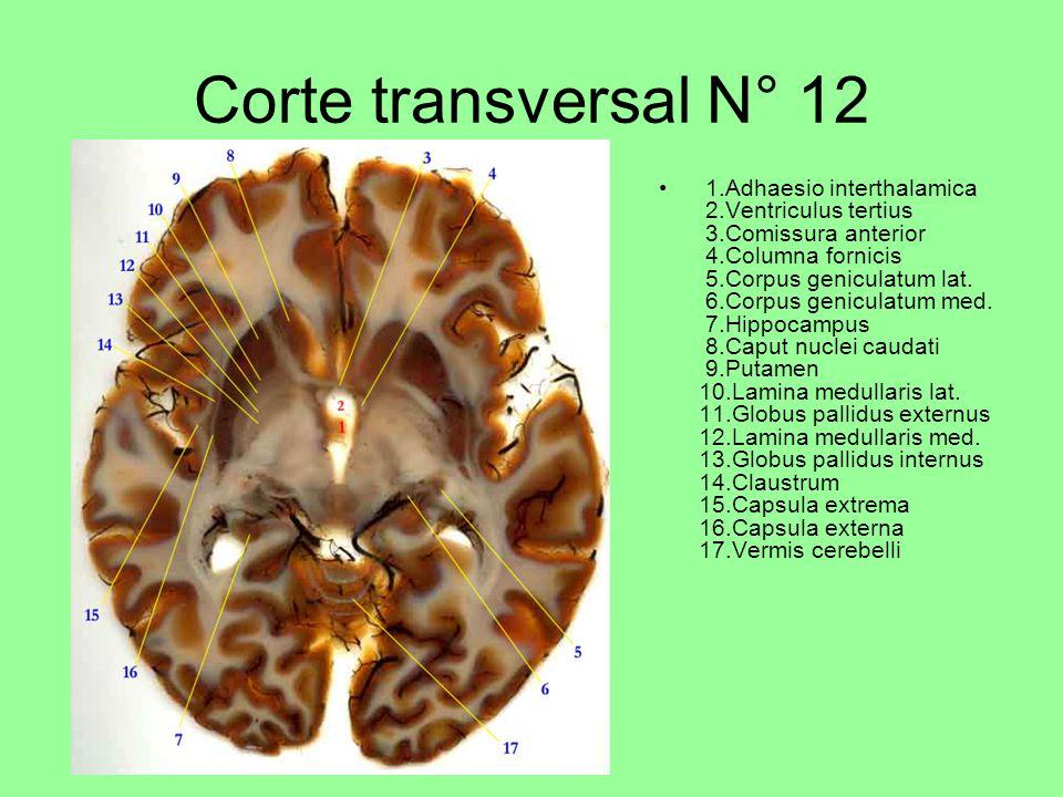 Corte transversal N° 12 1.Adhaesio interthalamica 2.Ventriculus tertius 3.Comissura anterior 4.Columna fornicis 5.Corpus geniculatum lat.