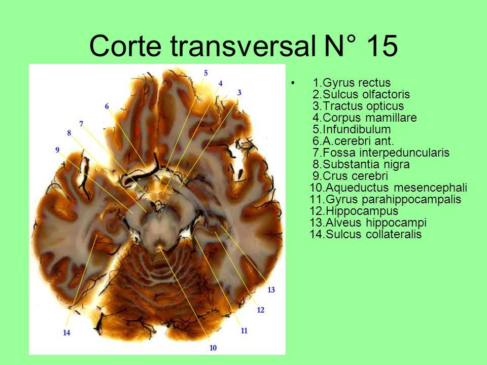 Corte transversal N° 15 1.Gyrus rectus 2.Sulcus olfactoris 3.Tractus opticus 4.Corpus mamillare 5.Infundibulum 6.A.cerebri ant.