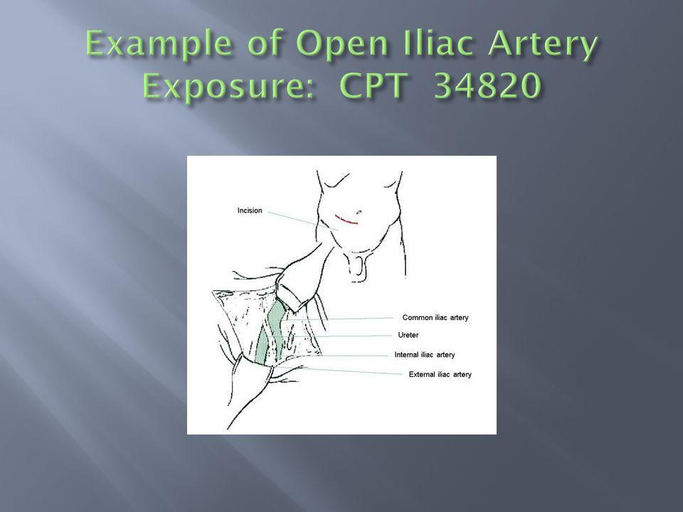  Aorta alone (no selective catheterization): 36200  Aorta Bilateral (Identifies accessing aorta via both legs): 36200-50  Aorta + 1 St Order Vessel (eg, renal artery) via different access points (Both legs): 36200 and 36245
