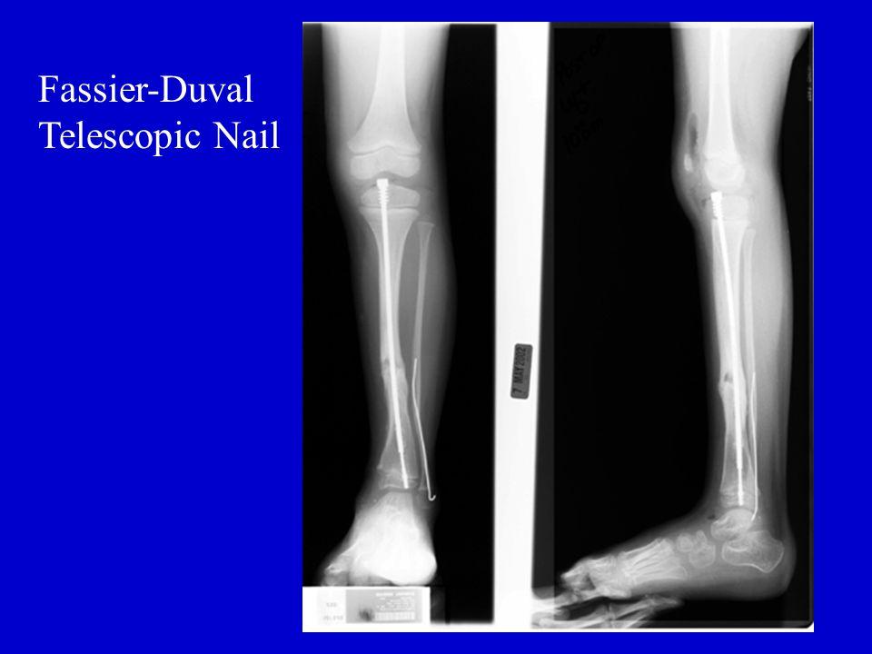 Fassier-Duval Telescopic Nail