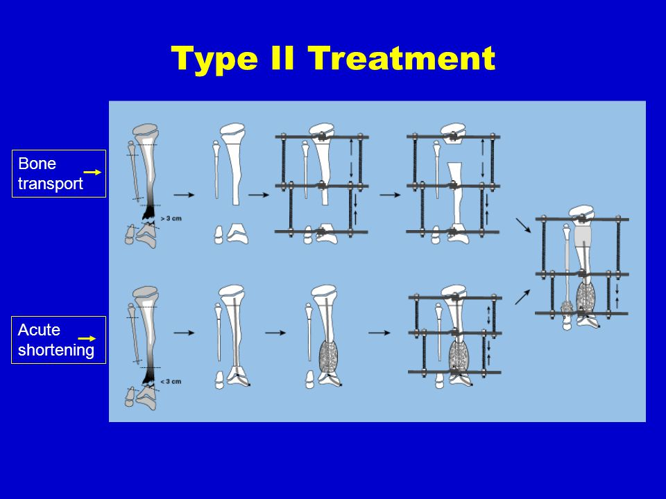 Type II Treatment Bone transport Acute shortening