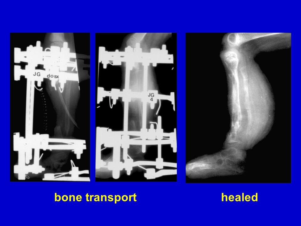 bone transporthealed
