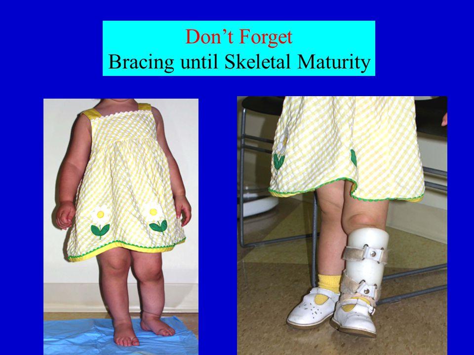 Don't Forget Bracing until Skeletal Maturity