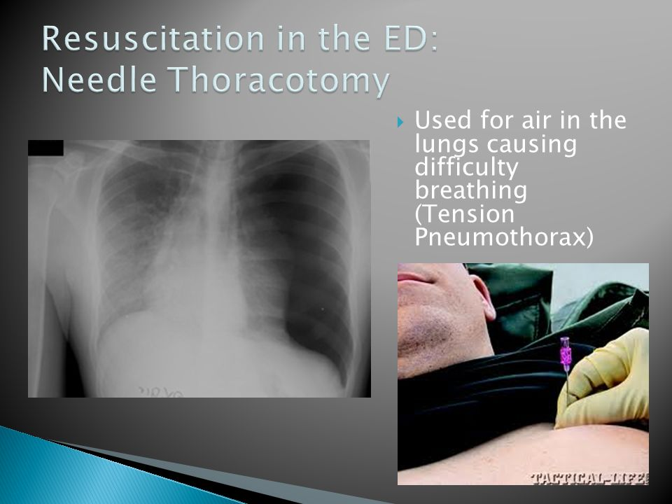  Used for air in the lungs causing difficulty breathing (Tension Pneumothorax)