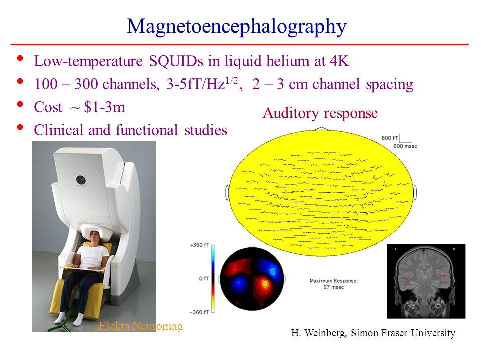 Magnetoencephalography Auditory response H.