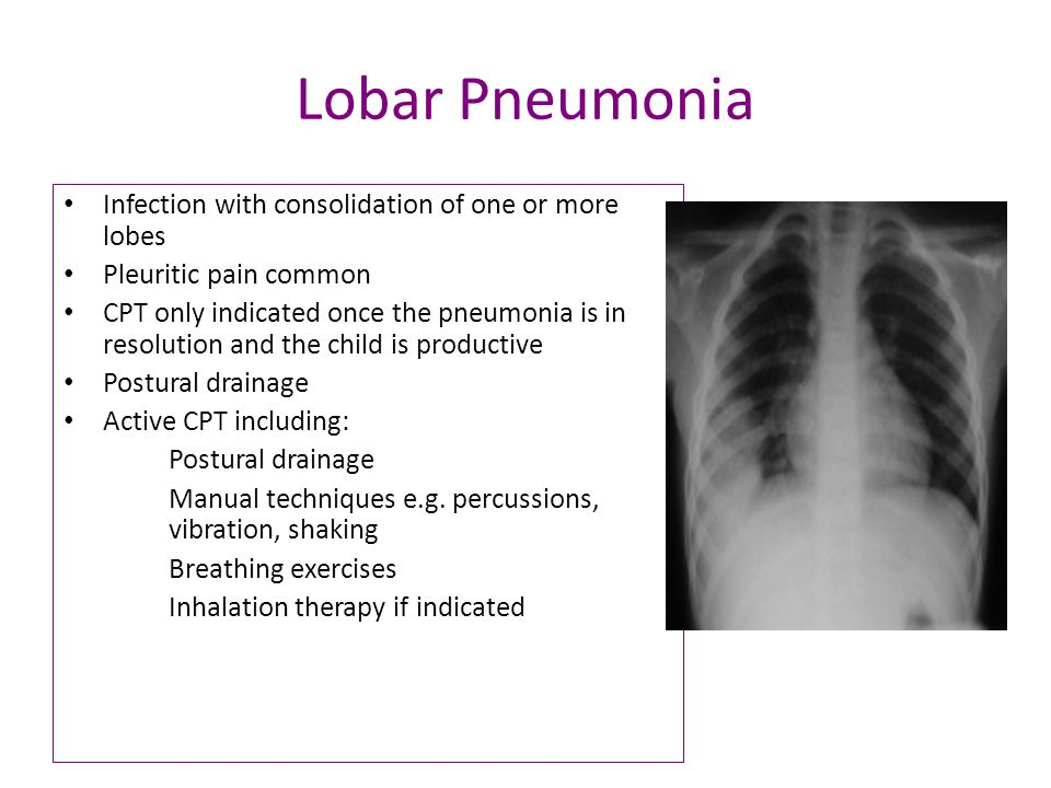 Lobar Pneumonia Infection with consolidation of one or more lobes Pleuritic pain common CPT only indicated once the pneumonia is in resolution and the child is productive Postural drainage Active CPT including: Postural drainage Manual techniques e.g.