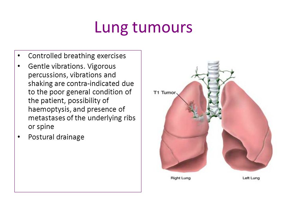 Lung tumours Controlled breathing exercises Gentle vibrations.