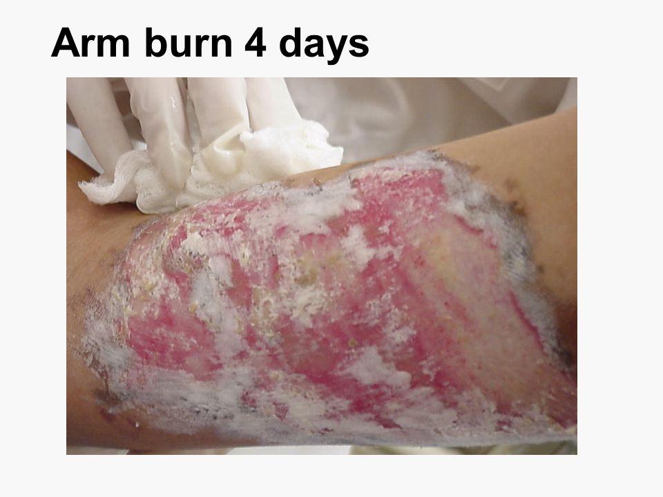 Arm burn 4 days