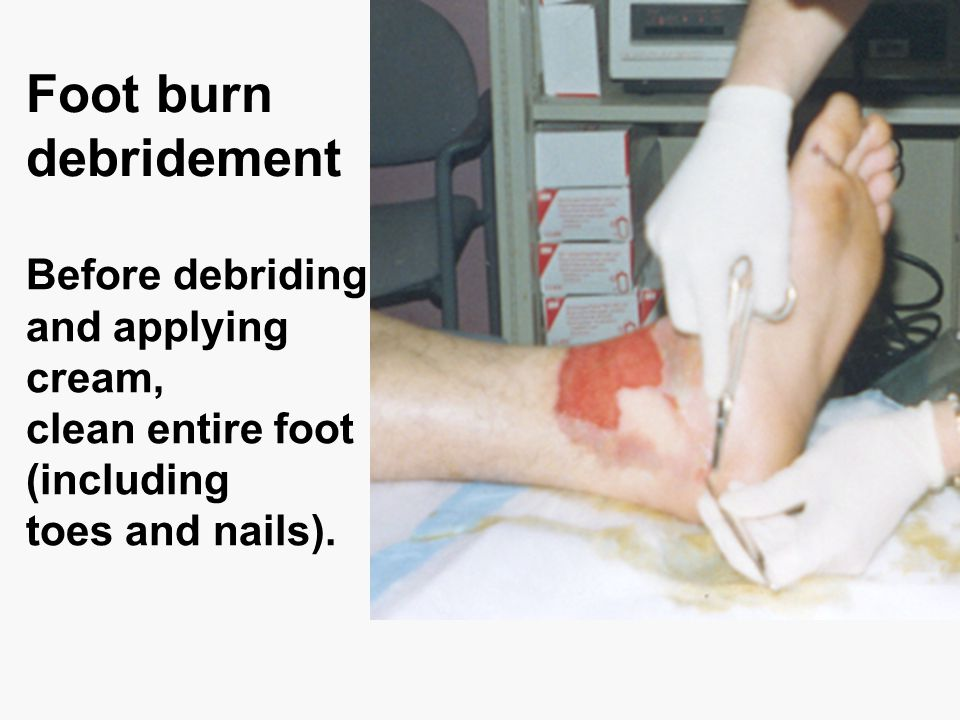 Foot burn debridement Before debriding and applying cream, clean entire foot (including toes and nails).