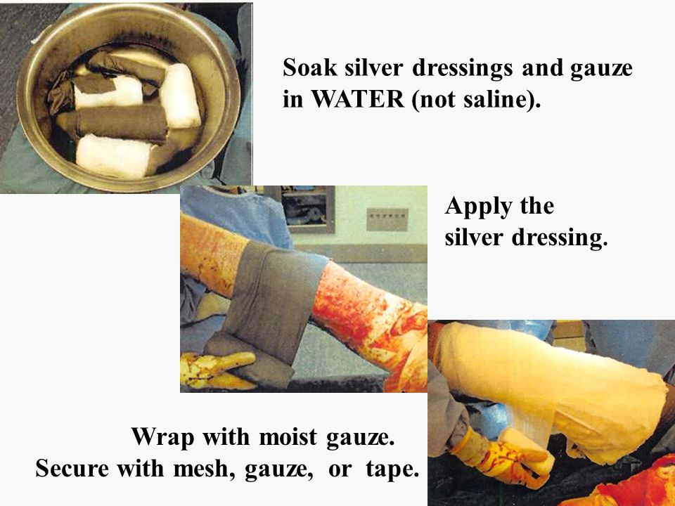pics Soak silver dressings and gauze in WATER (not saline). Apply the silver dressing. Wrap with moist gauze. Secure with mesh, gauze, or tape.