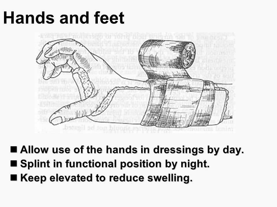 Hands and feet Allow use of the hands in dressings by day. Allow use of the hands in dressings by day. Splint in functional position by night. Splint