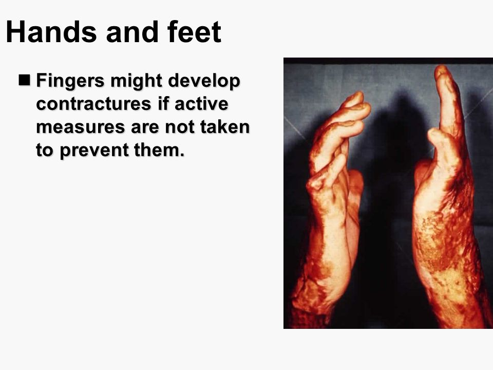 Hands and feet Fingers might develop contractures if active measures are not taken to prevent them. Fingers might develop contractures if active measu
