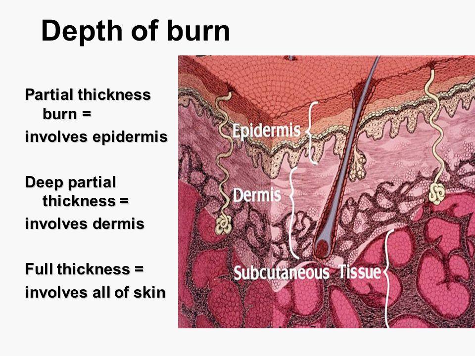 Depth of burn Partial thickness burn = involves epidermis Deep partial thickness = involves dermis Full thickness = involves all of skin