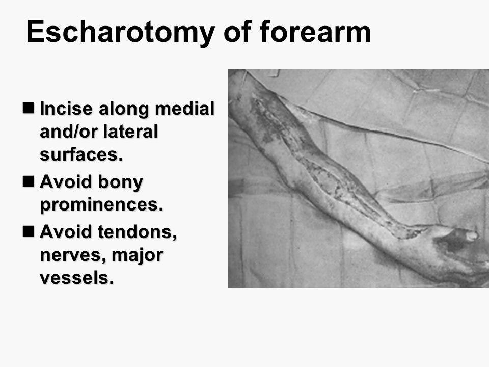 Escharotomy of forearm Incise along medial and/or lateral surfaces. Incise along medial and/or lateral surfaces. Avoid bony prominences. Avoid bony pr