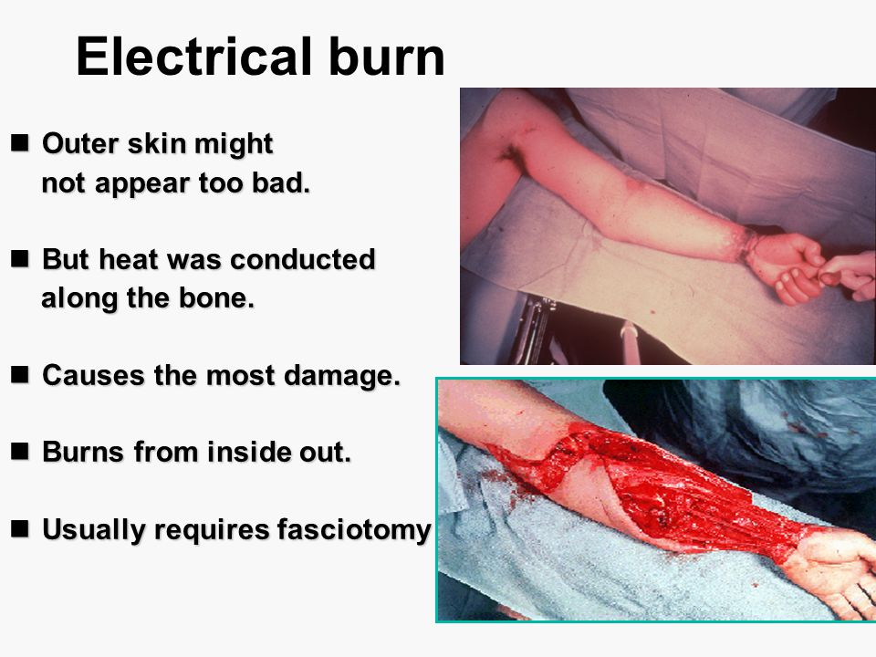 Electrical burn Outer skin might Outer skin might not appear too bad. not appear too bad. But heat was conducted But heat was conducted along the bone