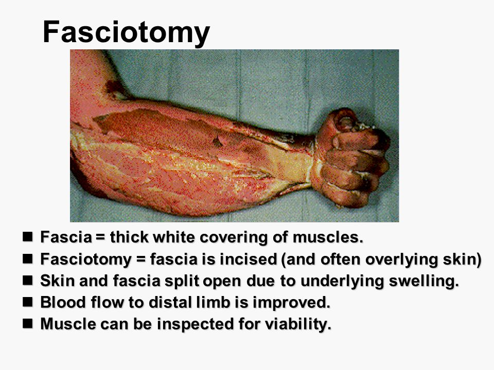 Fasciotomy Fascia = thick white covering of muscles. Fascia = thick white covering of muscles. Fasciotomy = fascia is incised (and often overlying ski
