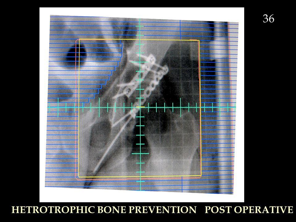 HETROTROPHIC BONE PREVENTIONPOST OPERATIVE 36