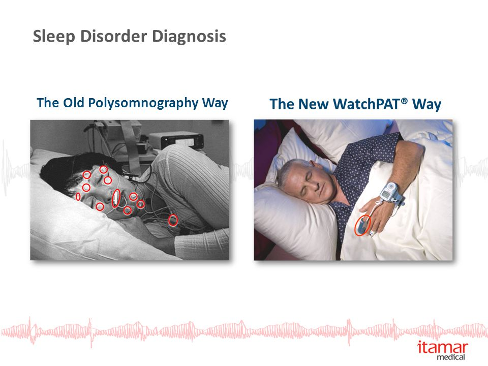 Sleep Disorder Diagnosis The Old Polysomnography Way The New WatchPAT® Way