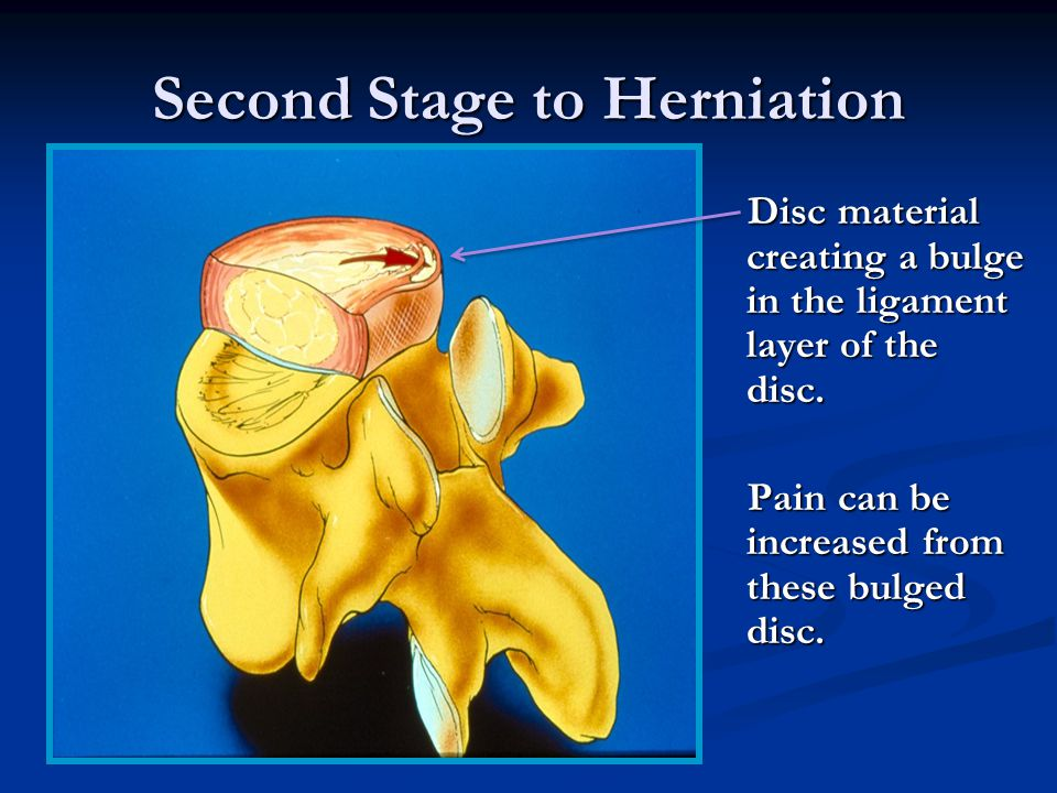 The First stage of Herniation Notice the tear in the ligament tissue Tear due to pressure triggers the degeneration process