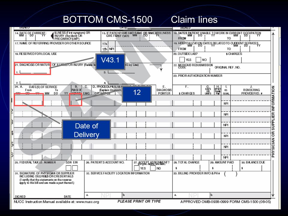 25 BOTTOM CMS-1500 Claim lines V43.1 Date of Delivery 12