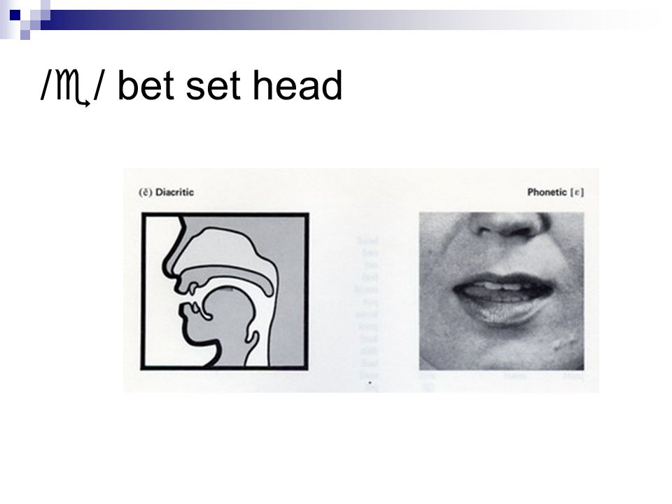/  / bet set head
