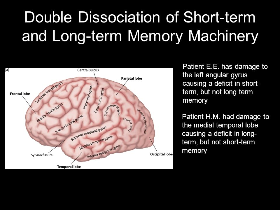 Double Dissociation of Short-term and Long-term Memory Machinery Patient E.E.